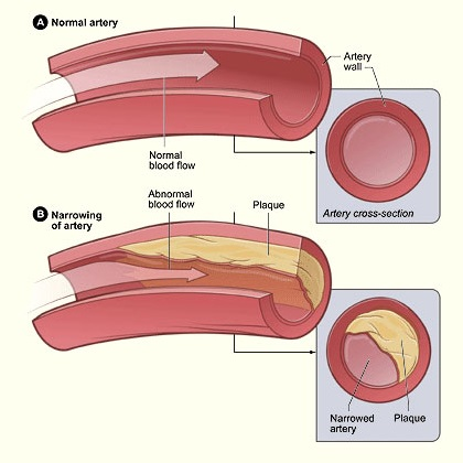 Cholesterol- Causes, Symptoms And Treatment - How To Tackle Cholesterol » Tackling Cholesterol